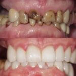 Tooth cleaning and tooth repair after treatment