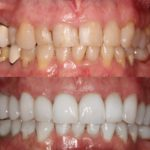 Teeth whitening after treatment