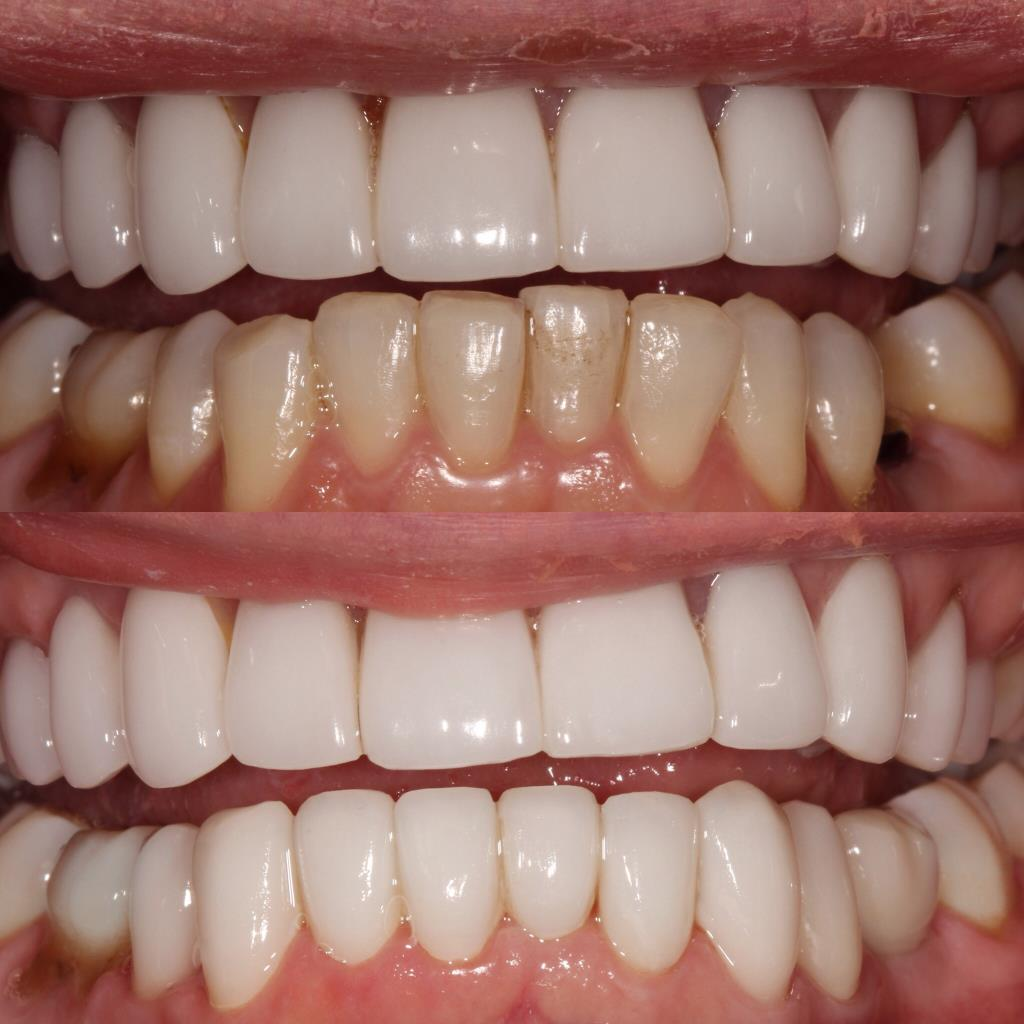 Cleaning and aligning teeth after treatment