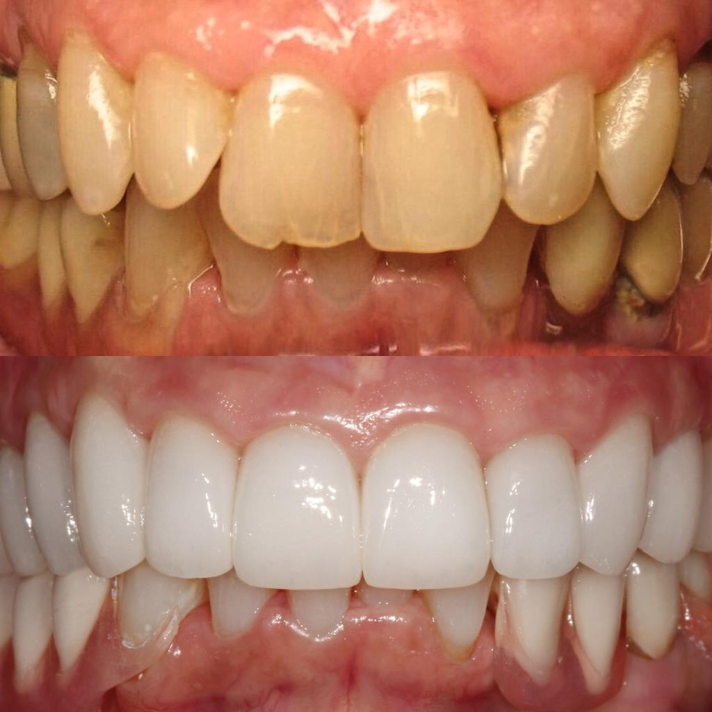 Tooth cleaning and tooth repair