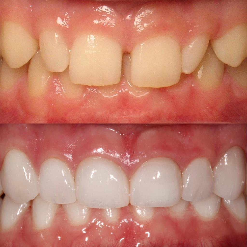Tooth cleaning with dental care